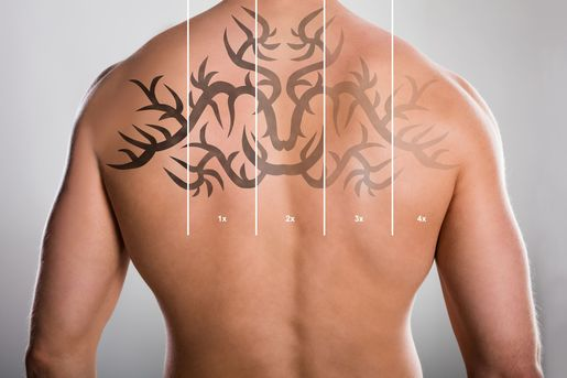 Laser Tattoo removal graph on shirtless man